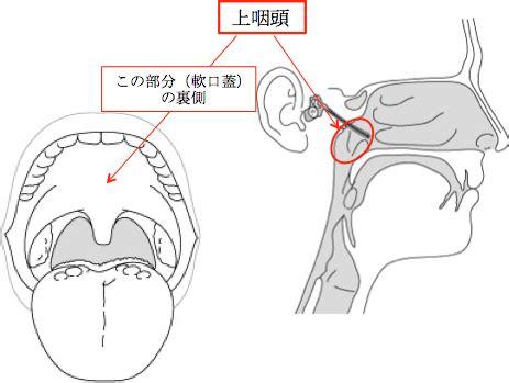 慢性 上 咽頭 炎 と は