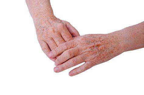 Ursachen, Symptome Und Behandlungsmöglichkeiten
