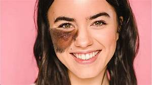 Living With Birthmarks  What Are The Ones You Can And