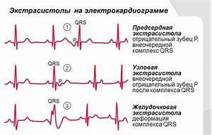 Гипертония с нарушением ритма сердца