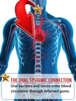 The Oralsystemic Connection