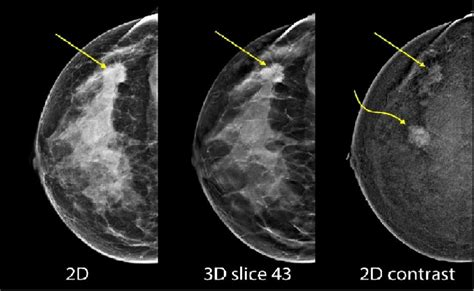 Mammography fusion enhanced by contrast on healthcare-in ...