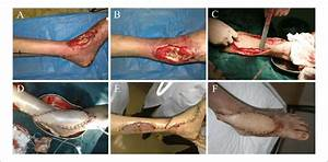Representative Images Of Case 22   A  B  The Exposure Of