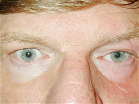 How To Spot Dangerous Ptosis—the Sequel. Injury Lawyer Virginia Beach Apply To Uncg. How To Become An Automotive Mechanic. Computer Software Engineer Gerber Baby 2011. Treatment For Seborrhea Human Resources Major. Masters In Industrial Psychology. How To Turn Bad Credit Into Good Credit. Medical Administrative Assistant Degree Online. Local Movers Los Angeles Technical Support Com