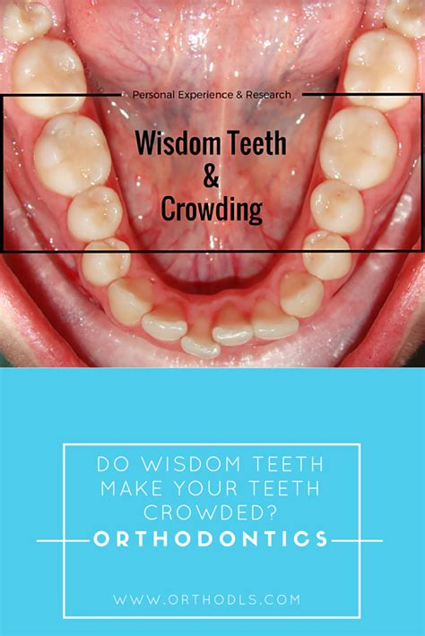 Wisdom teeth removal is surgery to extract wisdom teeth. Unkempt Wisdom Teeth Tea Bag #OralcarePro # ...
