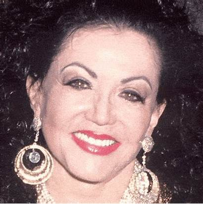 Jackie Stallone Mouth Age Surgery Plastic Starsinformer