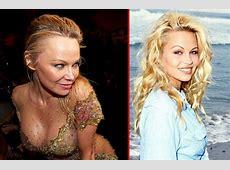 Pamela Anderson Plastic Surgery Addiction Is Destroying