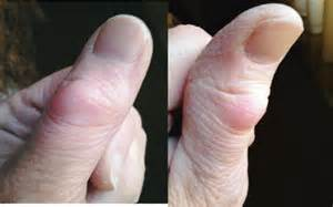 Bump On Thumb Joint