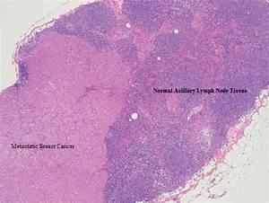 Histological Slide Showing Normal Lymph Node Tissue