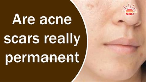 acne scars  permanent health beauty tips