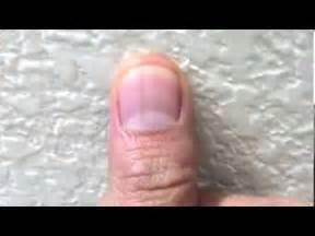 black line on nail melanoma quotes