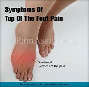 Top Of The Foot Pain  Treatment  Exercises  Causes  Symptoms