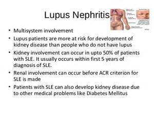 Lupus Nephritis Symptoms Dialysis and transplant for lupus nephritis Lupus Nephritis