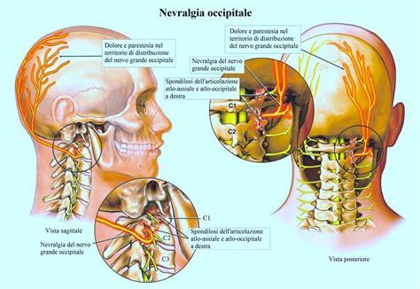 artrosi cervicale sintomi cura farmaci ed esercizi