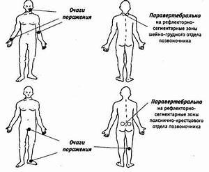 Биоптрон от остеохондроза