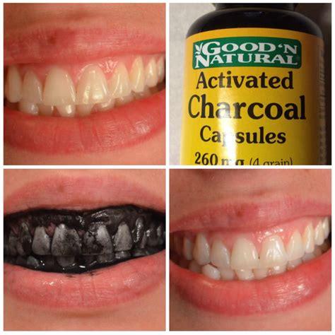 la recette pour avoir des dents blanches instantan 233 ment echantillons gratuits