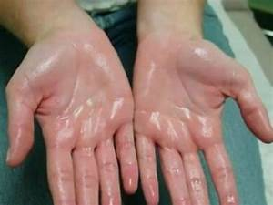 How To Stop Your Palms And Feet From Sweating
