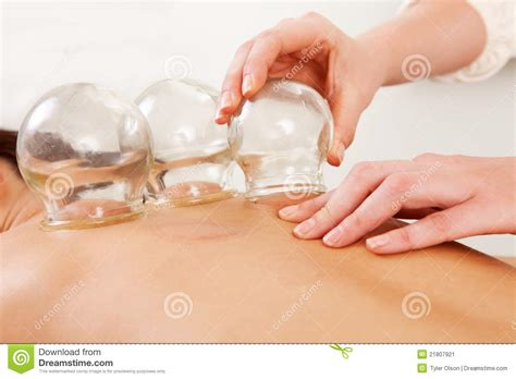 Fire Cupping Removal Of Glass Globe Stock Image Image