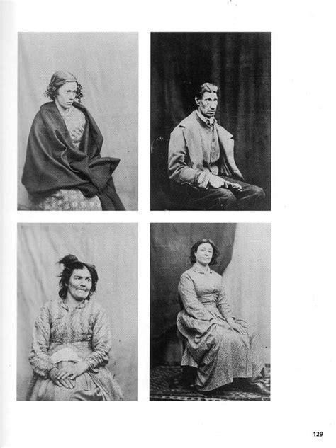 Hugh Welch Diamond (1809–1886)   Diamond photography