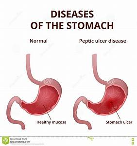 Peptic Ulcer Stomach Poster Cartoon Vector