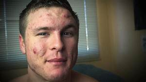Video: How One Man Defeated His Cystic Acne through ...