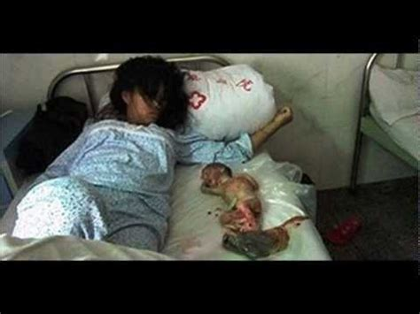 Cytotec 4 Semanas Feng Jianmei La China Forzada A Abortar Un Feto De 7