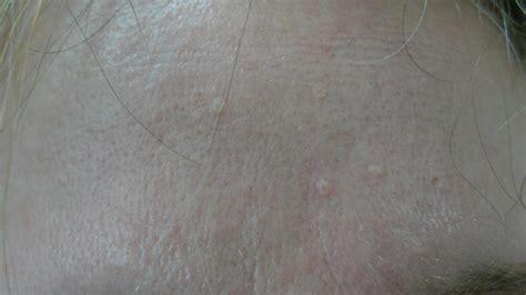 Sebaceous Hyperplasia Acd