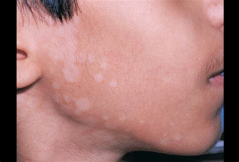 Slide show: Types of psoriasis - Mayo Clinic