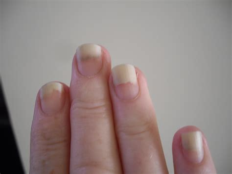 nails lifting from nail bed beautify themselves with