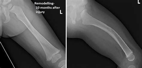 orthokids femoral shaft fractures