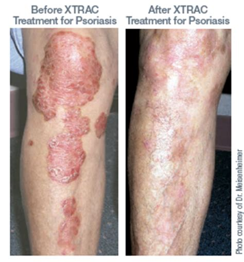 light therapy for psoriasis xtrac the new psoriasis light treatment schweiger