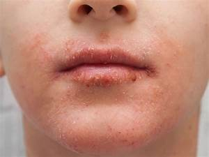 Dry Skin Around The Mouth  Causes  Treatment  And Remedies