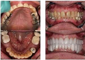 Treatment of Deep Bite by Cosmetic Crowns   Deep Bite ...