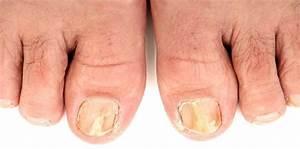 Какие народные средства против грибка ногтей