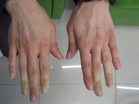 Cold Hands Raynauds Disease Autoimmune Diseases