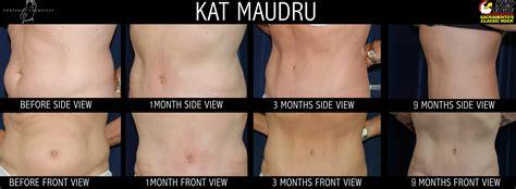 kat maudru  eagle sacramento tummy tuck patient testimonial