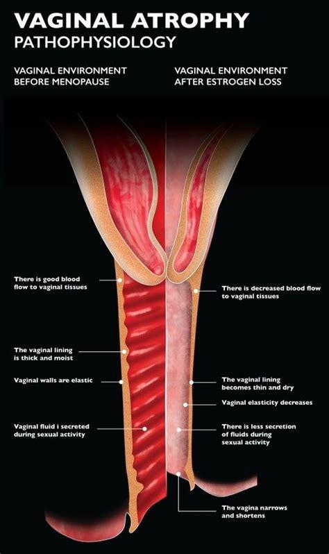 vaginal atrophy harley street emporium