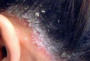 Псориаз болячки на голове