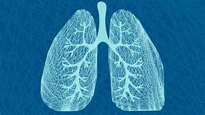 Should You Have A Lung Cancer Screening