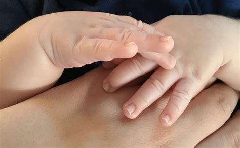 brachial plexus injuries hand surgery wrist surgery elbow