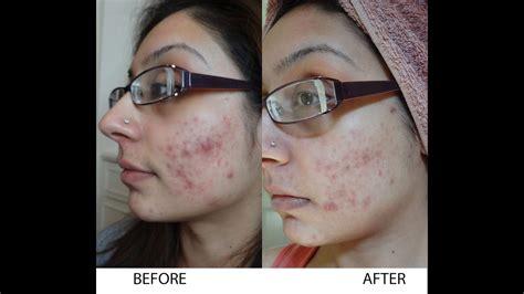 wedding vlog  rid  scaring acne tumeric viche skin