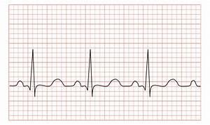 File Tachycardia Ecg Paper Svg