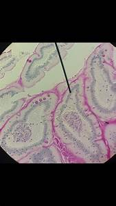 Small Intestine  Simple Cuboidal Epithelium