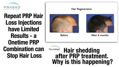 hair shedding or hair loss repeat prp hair loss injections can cause hair shedding