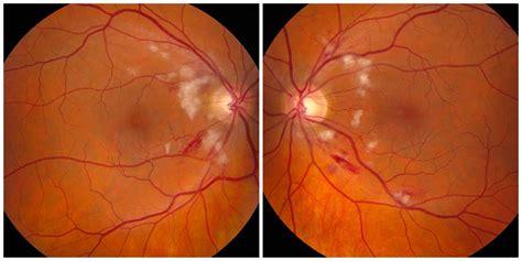 putschers retinopathy july  illinois retina