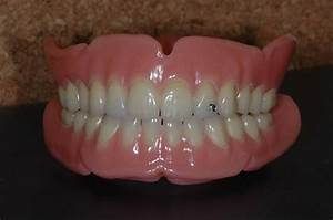 Valplast Prothese Abrechnung : ceramic dent tran thun bern zahnarzt prothesenreparaturen ~ Themetempest.com Abrechnung