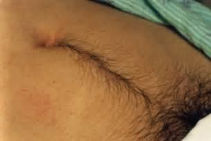 navel hair pics hirsutism pictures symptoms causes treatment