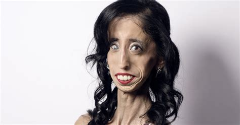 How Being Called The 'world's Ugliest Woman' Transformed
