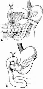 Endoscopy And Ercp In The Setting Of Previous Upper Gi