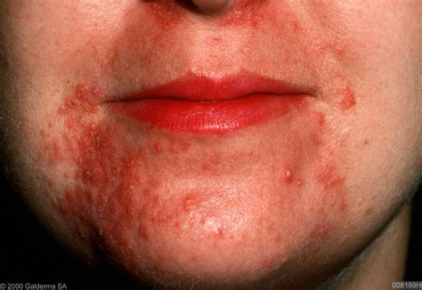 tetracycline or doxycycline for perioral dermatitis